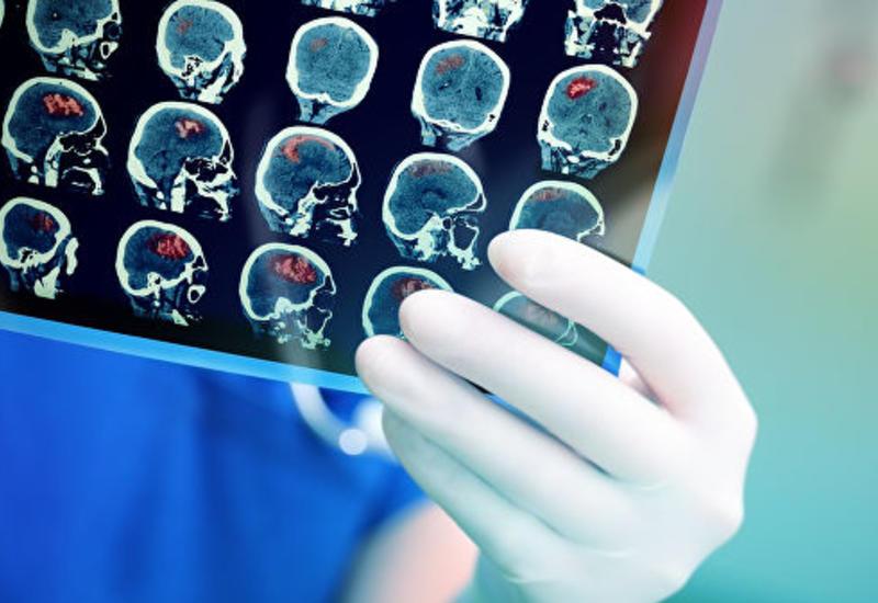 """Биологи впервые успешно """"заразили"""" мышь болезнью Альцгеймера"""