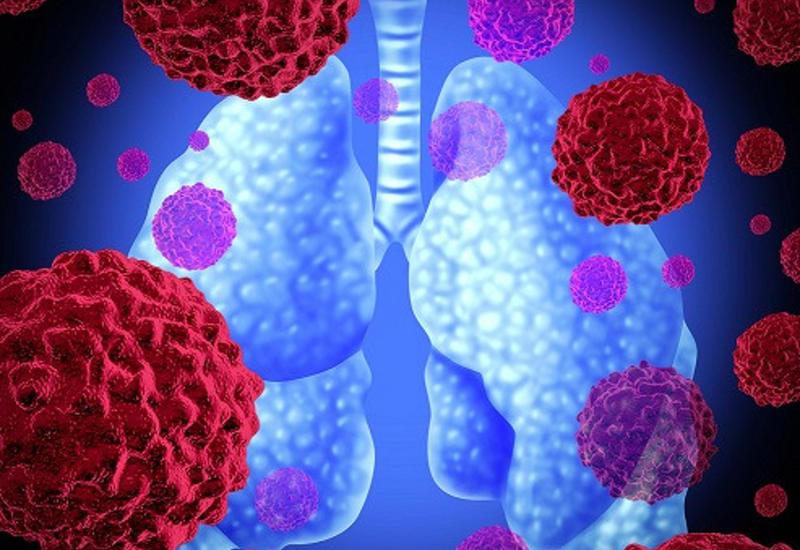Ученые нашли способ распознать ракза20секунд