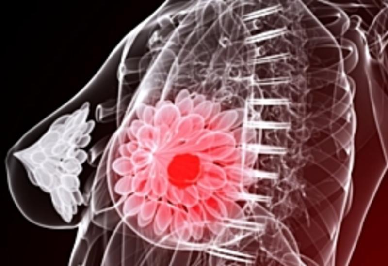 Назван продукт, резко увеличивающий риск развития рака