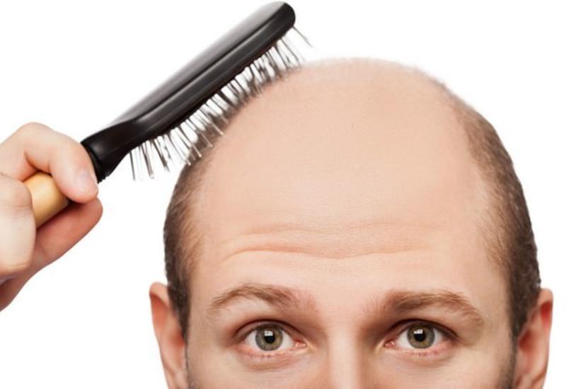 Найден способ борьбы с потерей волос