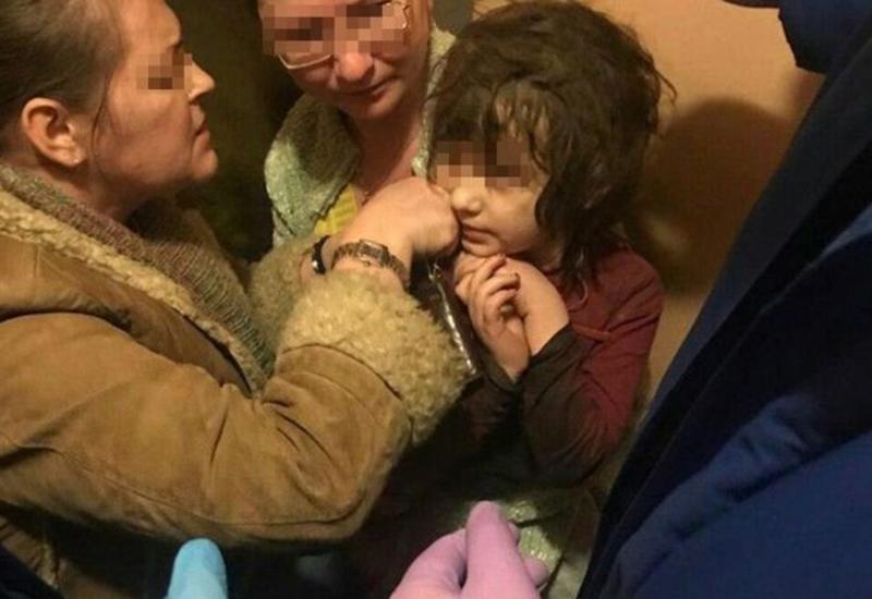 В Москве спасли девочку-маугли с вросшим в шею проводом