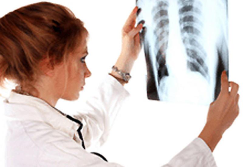 В Азербайджане уменьшилось число больных туберкулезом