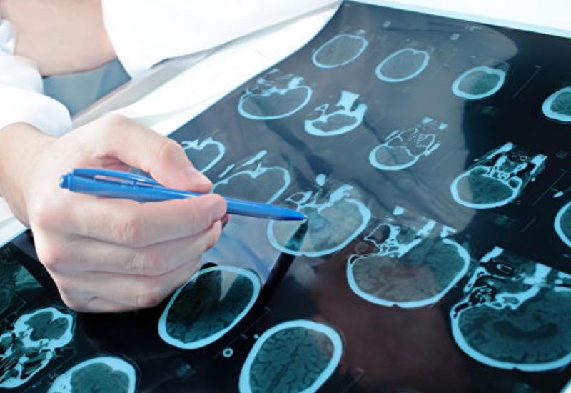 Ученые близки к созданию лекарства от рака мозга