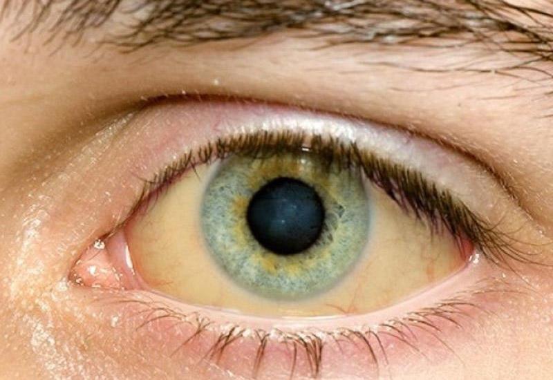 """Gözlərinə bax, xəstəliyini tap <span class=""""color_red"""">– Təhlükəli dəyişikliklər</span>"""