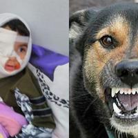 "Азербайджанцев возмутило жестокое нападение бешеной собаки на ребенка <span class=""color_red"">- СОЦСЕТИ - ФОТО</span>"