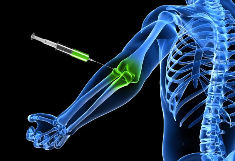Восстанавливать кости после перелома будут уколами