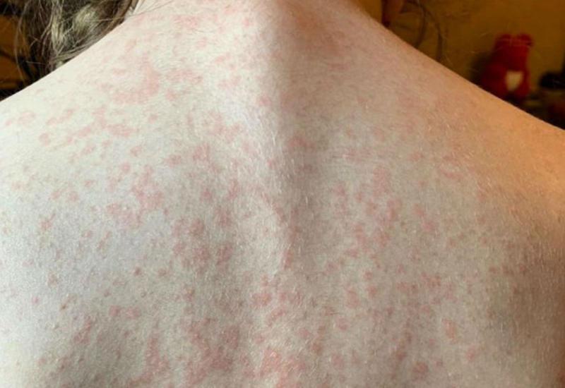 5болезней кожи, которые говорят опсихологических проблемах