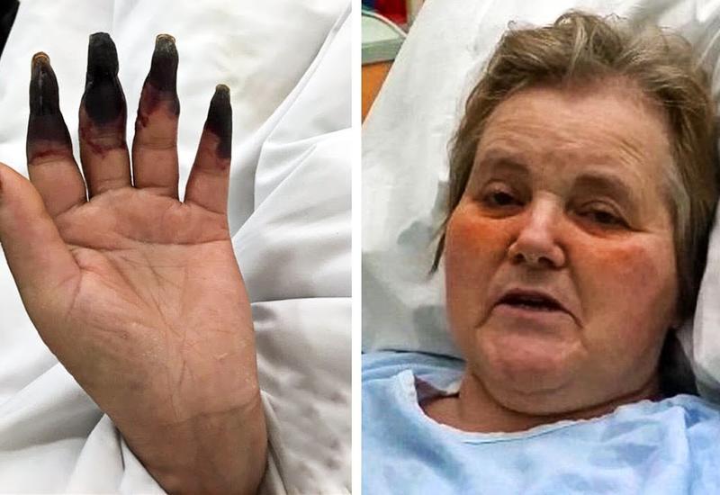 Через 2 дня после уборки женщина начала замечать, что ее пальцы чернеют