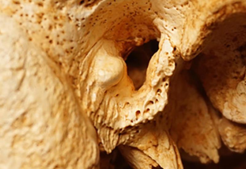 У неандертальцев нашли необъяснимую современную болезнь