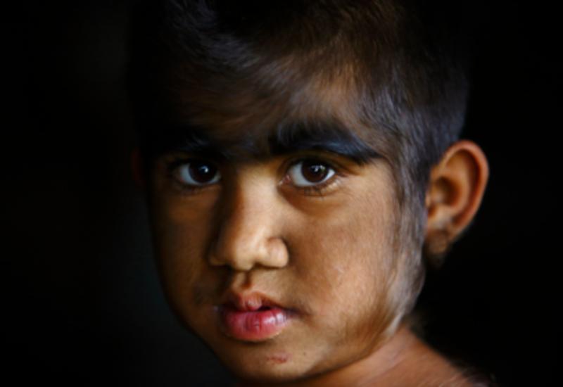 В Испании редкое заболевание сделало детей похожими на оборотней