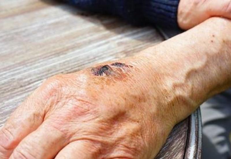 Минздрав о состоянии жителей Сабирабада, заразившихся сибирской язвой
