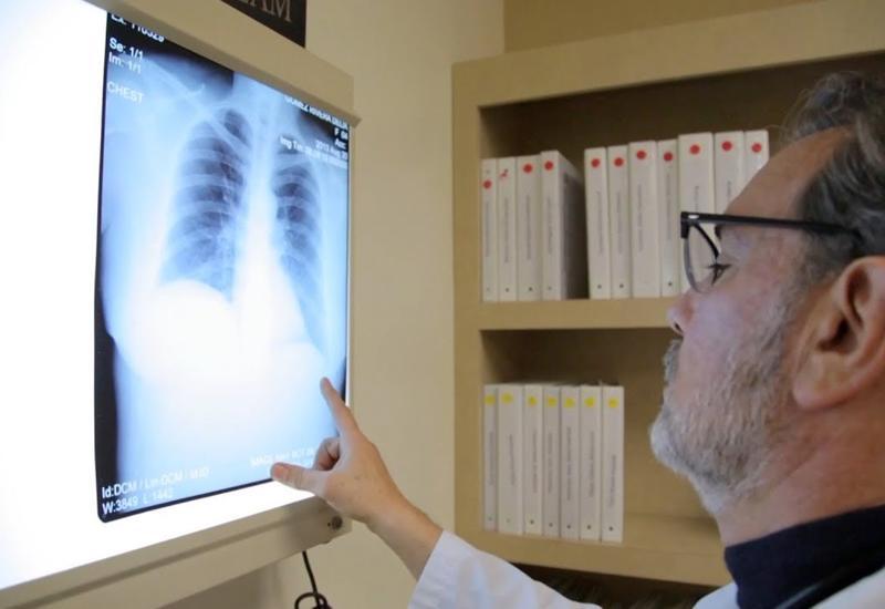 В Канаде зафиксирован второй случай заболевания легких из-за вейпа