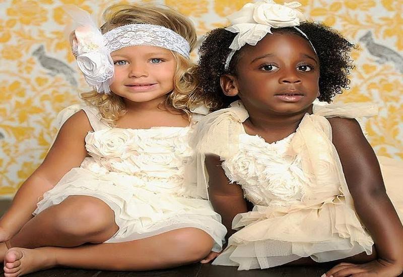 Эти близняшки родились разных цветов: вот как они выглядят спустя 18 лет