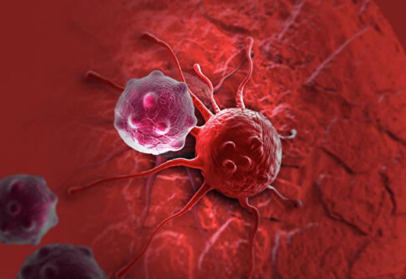 Ученые нашли способ остановить распространение рака