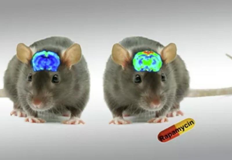 Ученые выяснили, как можно остановить старение мозга и улучшить память
