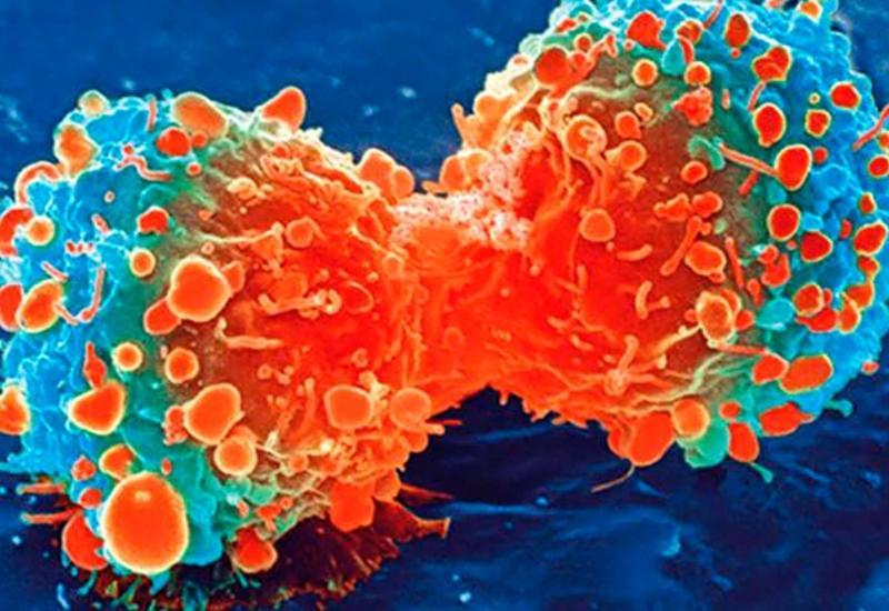 Названа настоящая причина возникновения рака