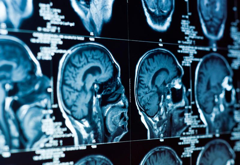 Ученые рассказали о преждевременном старении мозга