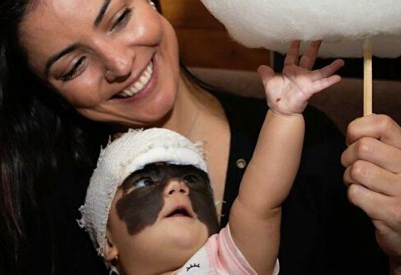 Мама девочки с родимым пятном на все лицо показала результат операций