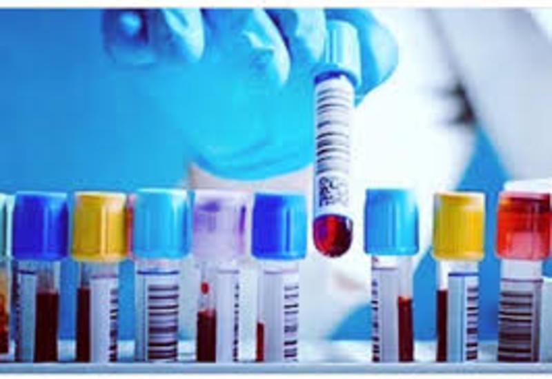 В Аргентине разработали экспресс-тест для выявления лихорадки денге