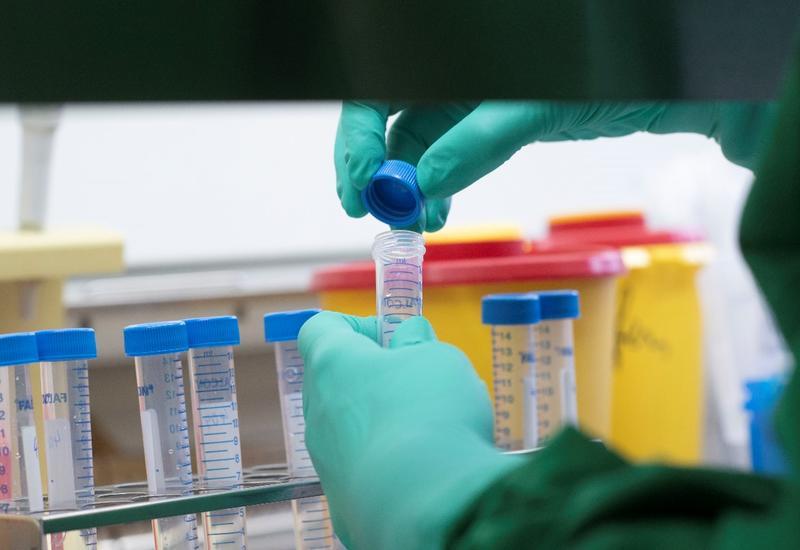 В Азербайджане выявлено еще 6 случаев заражения коронавирусом, один человек скончался