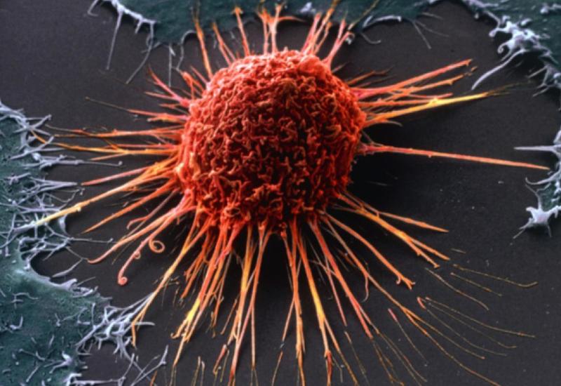 Раковые клетки убили с помощью голода