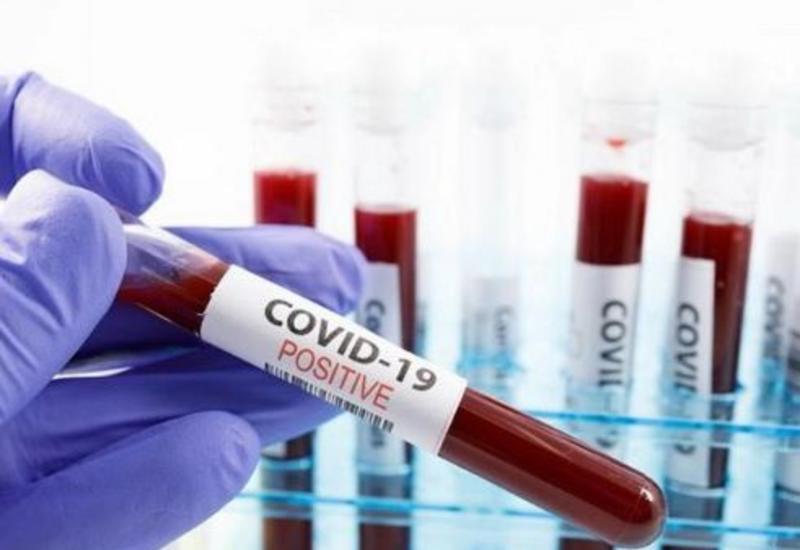 За сутки в Армении COVID-19 заразились 2 213 человек