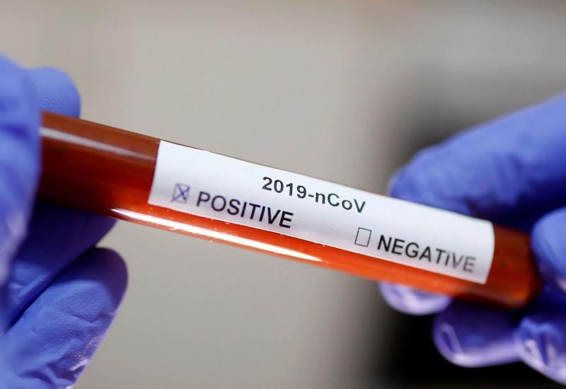 Стал известен один из самых первых случаев заражения коронавирусом в Ухане