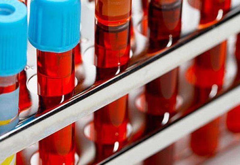 В Азербайджане в сутки проводят 3000 тестов на коронавирус
