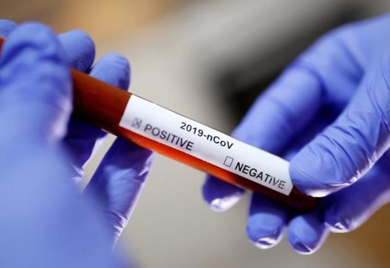 Число инфицированных коронавирусом в Грузии достигло 420 человек