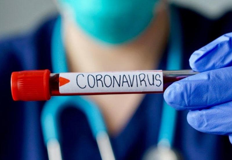 Evinizdəki bu əşya koronavirusu sürətlə yayır