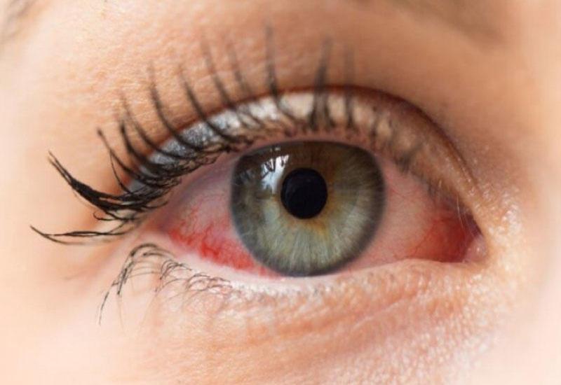 Koronavirus ən çox gözlərdə yaşayır - Sağalandan sonra belə
