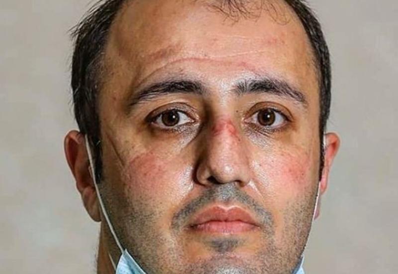 Müğənni Eldar Qasımov koronavirusla mübarizə aparan həkimlərə təşəkkür etdi