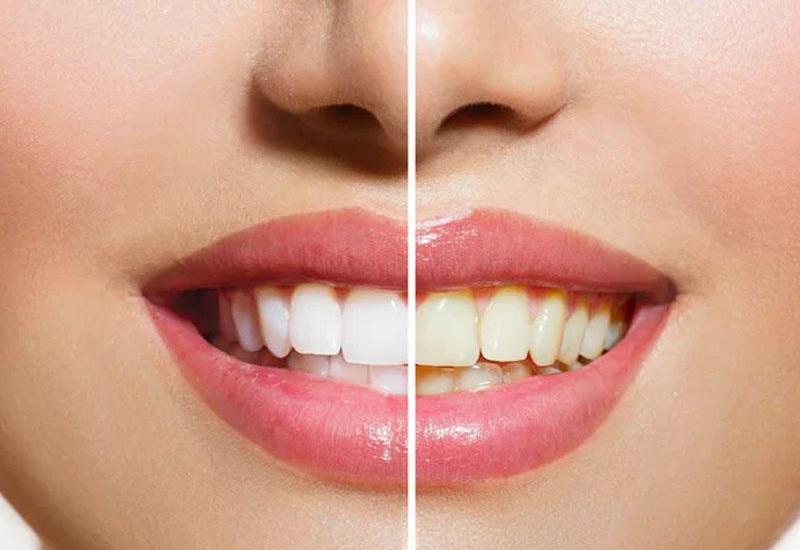 Dişləri təbii yolla necə ağartmaq olar?