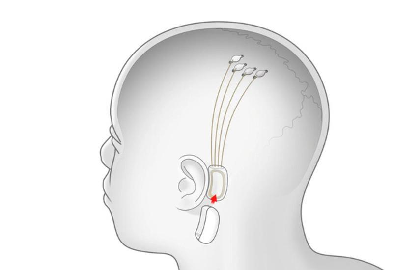 Илон Маск надеется успешно чипировать человеческий мозг в ближайший год