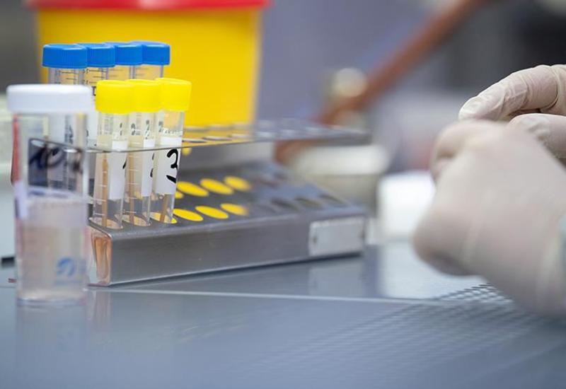 Иранские наборы для диагностики коронавируса прибыли в Германию