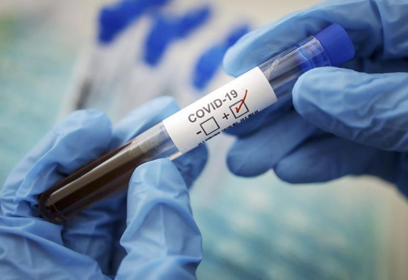 Число умерших от коронавируса в Иране превысило 7500 человек