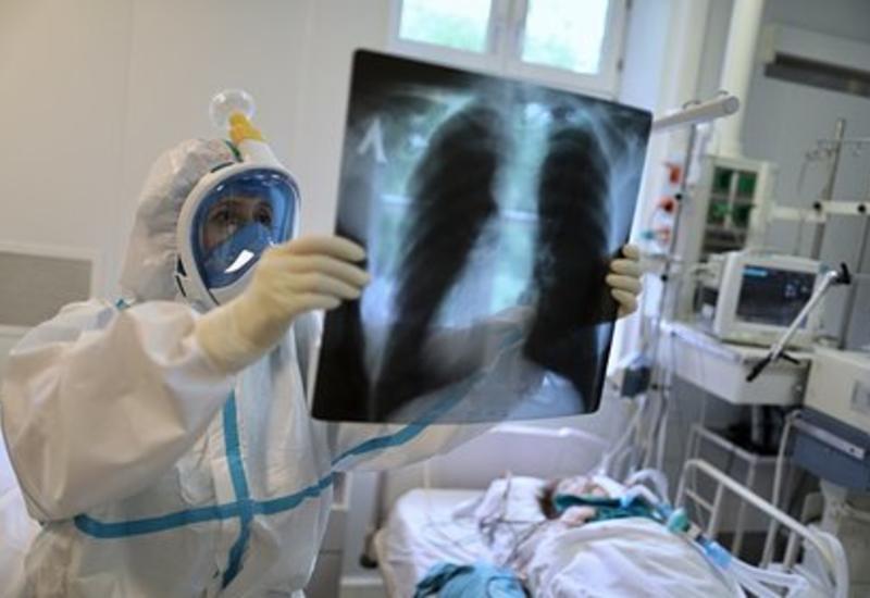 В России выявили почти 9 тысяч новых случаев заражения коронавирусом