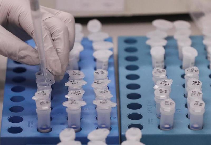Ученые назвали степень заразности коронавируса