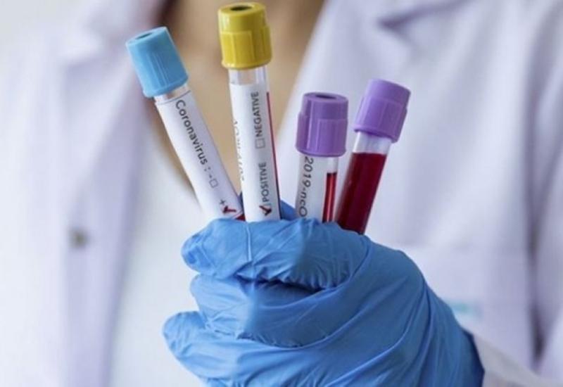В Армении за сутки коронавирусом заразились 187 человек