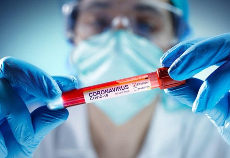 За сутки в Армении COVID-19 заразились 2 474 человека, умерли 14 человек