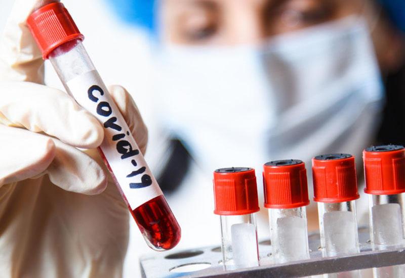 За последние сутки в России коронавирусом заразились 8 995 человек