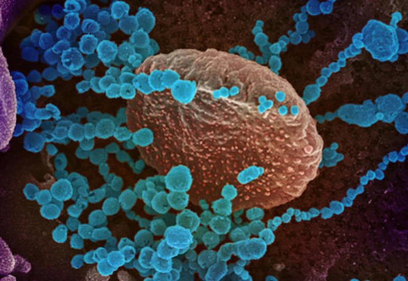 Ученые объяснили развитие тяжелых осложнений от коронавируса