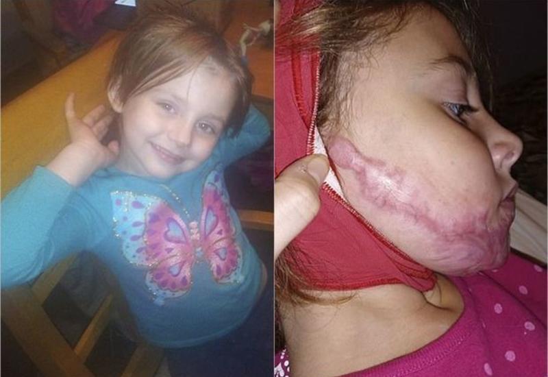 Шестилетняя девочка получила ожоги лица  от антисептика