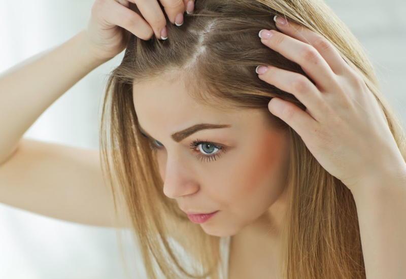 Врач назвал обязательное условие для предотвращения выпадения волос