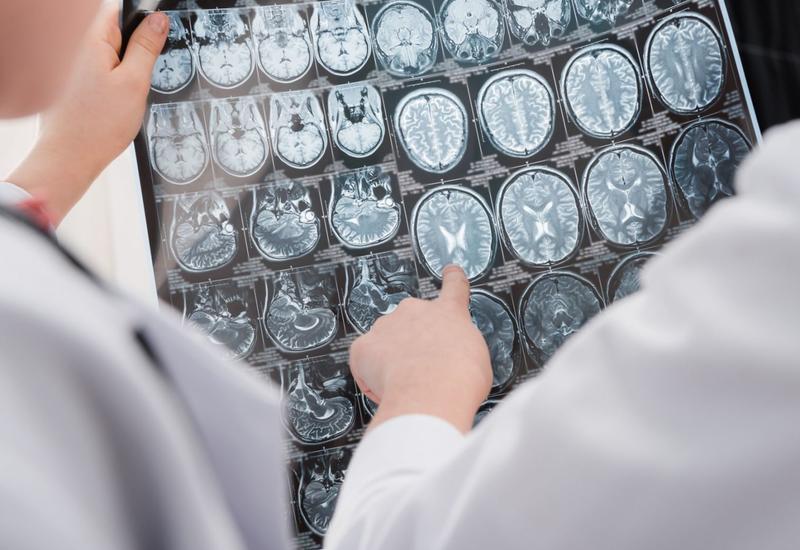 Как коронавирус действует на сосуды мозга