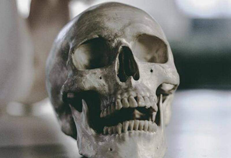 Тайна древнего черепа с клеймом, найденного на юге Азербайджана