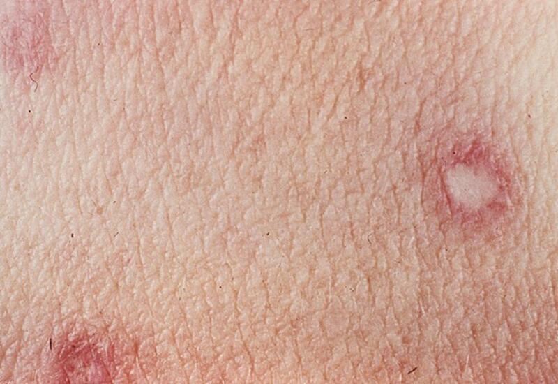 10 странных пятен на коже, которые вы обязательно должны проверить