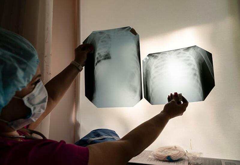Ученые назвали причину повторного заражения коронавирусом