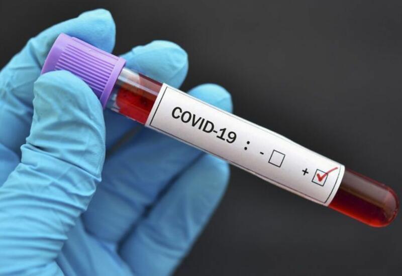 Количество жертв коронавируса в Иране превысило 60 тыс. человек