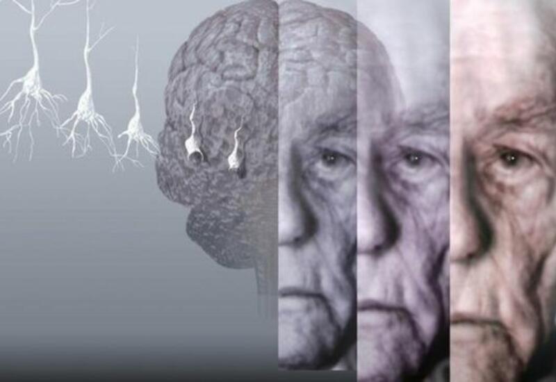 Врач описал необычный симптом болезни Альцгеймера
